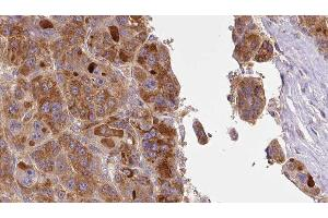 Image no. 2 for anti-Solute Carrier Family 16, Member 1 (Monocarboxylic Acid Transporter 1) (SLC16A1) antibody (ABIN6266268)