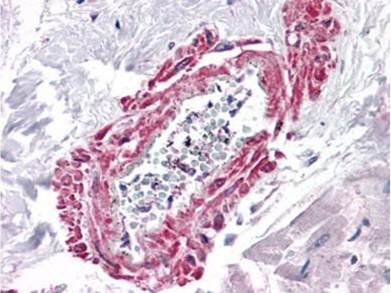 Immunohistochemistry (Paraffin-embedded Sections) (IHC (p)) image for anti-Angiotensin II Type-1 Receptor antibody (Angiotensin II Receptor, Type 1) (ABIN615708)