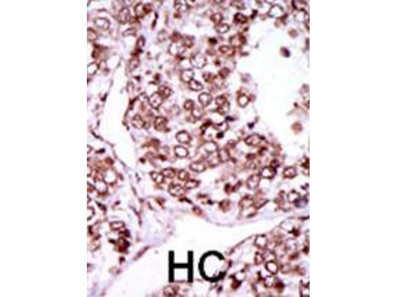 Immunohistochemistry (IHC) image for anti-Calcium/calmodulin-Dependent Protein Kinase II gamma (CAMK2G) (AA 309-338), (C-Term) antibody (ABIN391313)