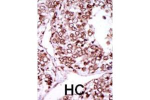 Immunohistochemistry (IHC) image for anti-CAMK2G antibody (Calcium/calmodulin-Dependent Protein Kinase II gamma) (AA 309-338) (ABIN391313)