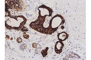 Image no. 1 for anti-Prolactin-Induced Protein (PIP) (N-Term) antibody (ABIN2682484)