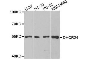 Image no. 1 for anti-24-Dehydrocholesterol Reductase (DHCR24) antibody (ABIN6139576)