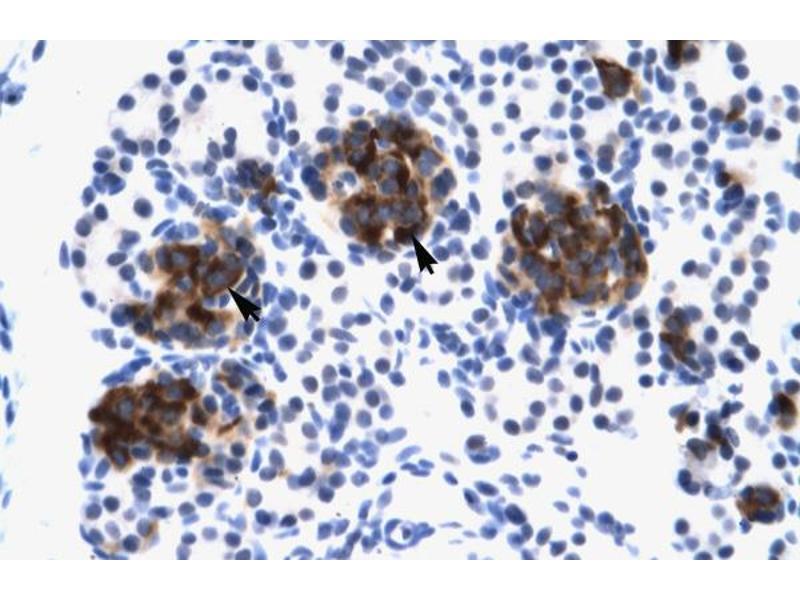 Immunohistochemistry (IHC) image for anti-Zinc Finger Protein 182 (ZNF182) (Middle Region) antibody (ABIN2777980)