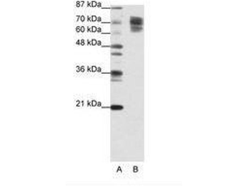 image for anti-Catenin (Cadherin-Associated Protein), beta 1, 88kDa (CTNNB1) (C-Term) antibody (ABIN202911)