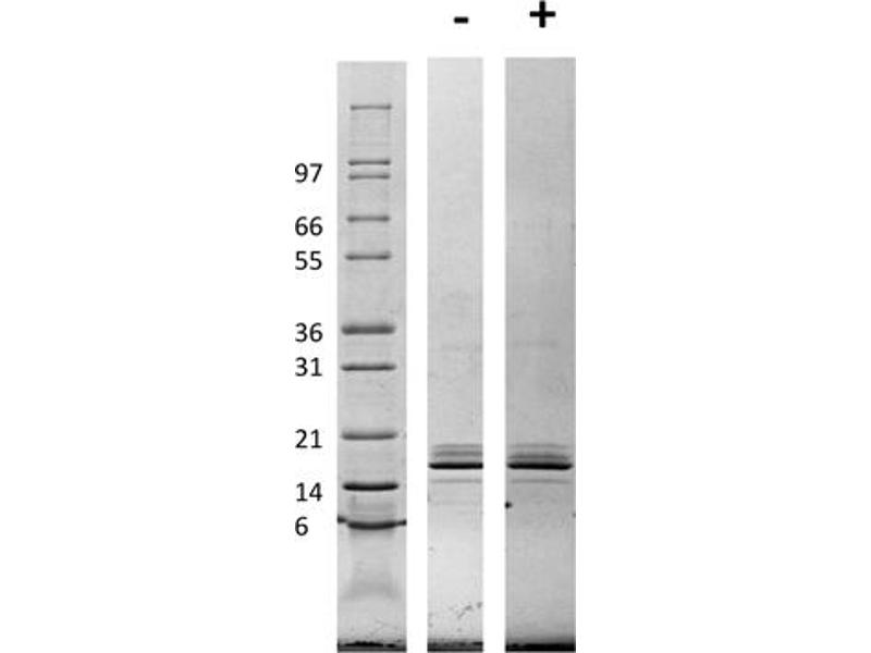 Image no. 1 for Chemokine (C-C Motif) Ligand 2 (CCL2) protein (ABIN6699616)