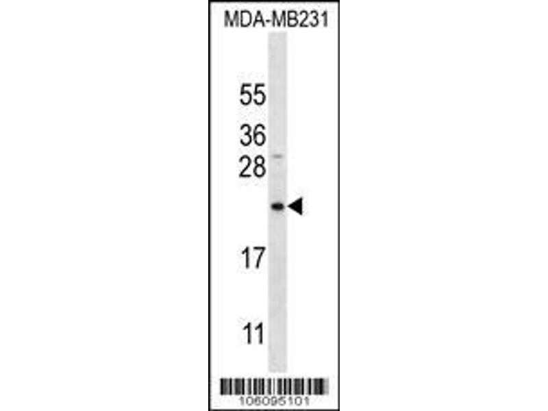 Western Blotting (WB) image for anti-Peptidyl-tRNA Hydrolase 2 (PTRH2) (AA 80-110), (Center) antibody (ABIN650622)