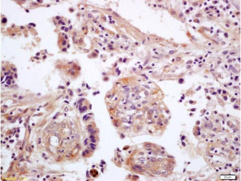 Immunohistochemistry (IHC) image for anti-WNT5A antibody (Wingless-Type MMTV Integration Site Family, Member 5A) (AA 330-380) (ABIN675758)