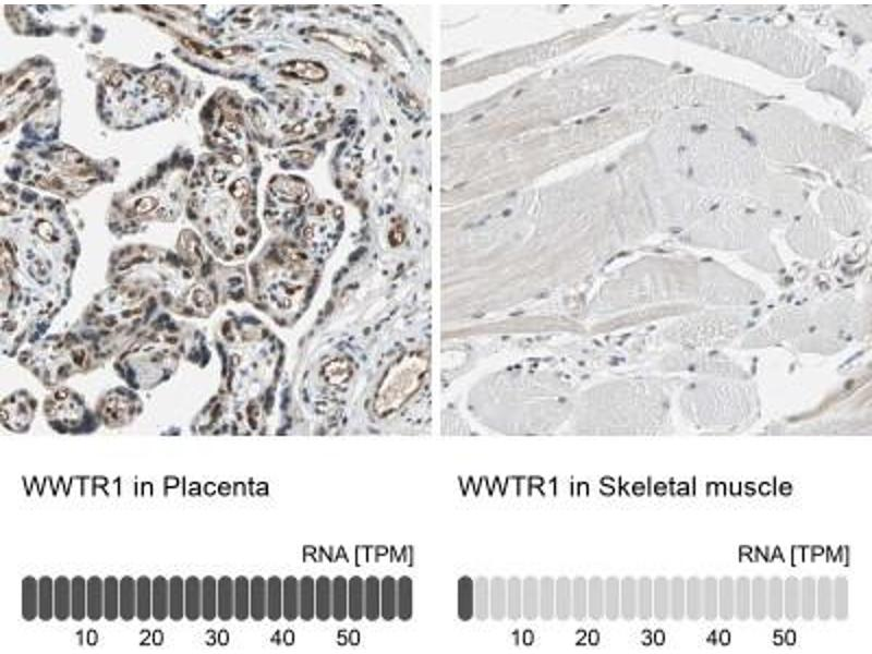 Immunohistochemistry (Paraffin-embedded Sections) (IHC (p)) image for anti-WW Domain Containing Transcription Regulator 1 (WWTR1) antibody (ABIN4357944)