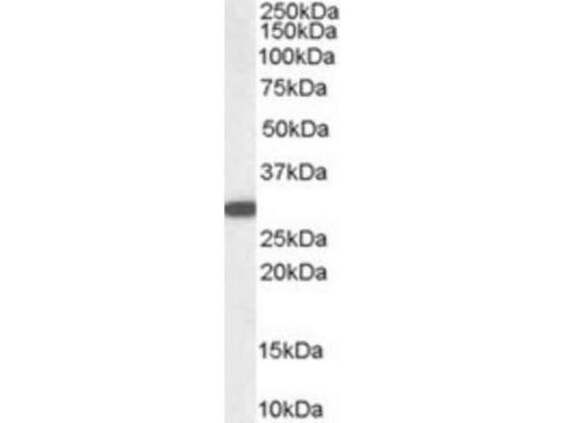Western Blotting (WB) image for anti-NQO1 antibody (NAD(P)H Dehydrogenase, Quinone 1) (C-Term) (ABIN249473)