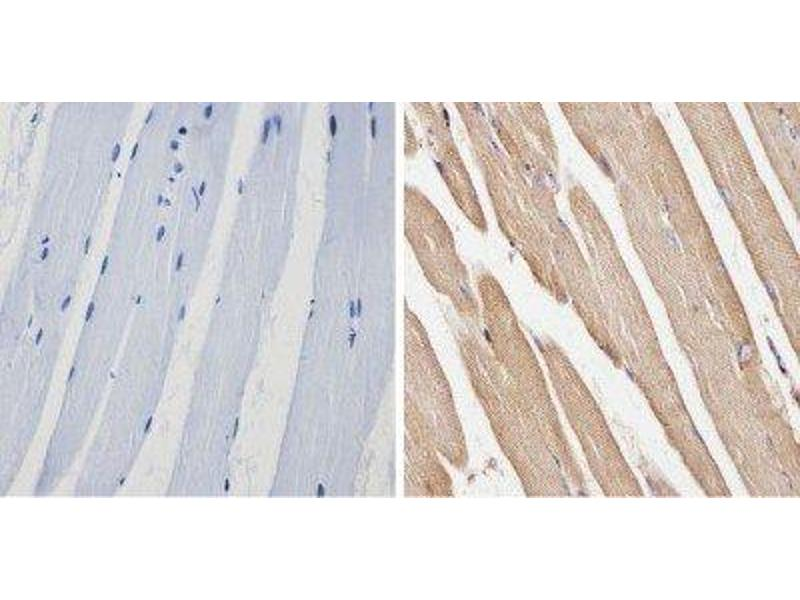 Immunohistochemistry (Paraffin-embedded Sections) (IHC (p)) image for anti-Spectrin beta Chain, Erythrocyte (SPTB) antibody (ABIN152731)