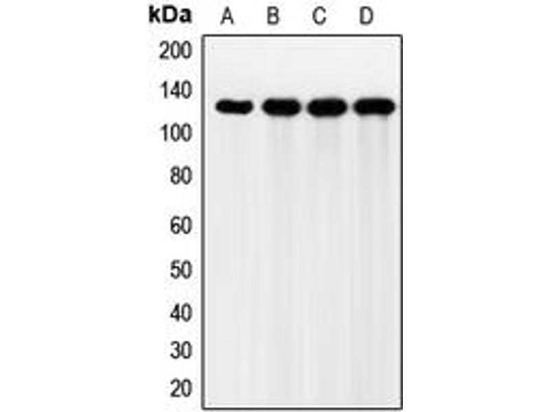 Western Blotting (WB) image for anti-Fibroblast Growth Factor Receptor 2 (FGFR2) (Center) antibody (ABIN2706148)