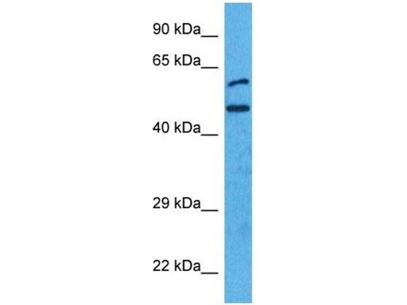 Western Blotting (WB) image for anti-Interferon Regulatory Factor 4 (IRF4) (N-Term) antibody (ABIN2780428)