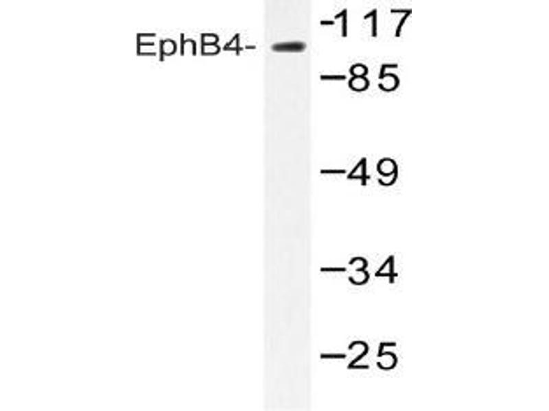 Western Blotting (WB) image for anti-EPH Receptor B4 antibody (EPHB4) (ABIN498286)