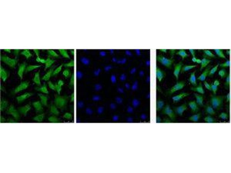 Immunofluorescence (IF) image for anti-Keratin 18 (KRT18) antibody (ABIN3181165)