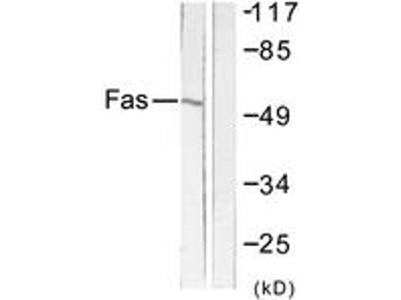Western Blotting (WB) image for anti-FAS antibody (Fas (TNF Receptor Superfamily, Member 6)) (ABIN1533427)