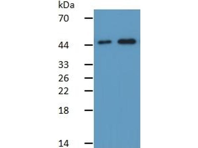 Caspase 9, Apoptosis-Related Cysteine Peptidase (CASP9) ELISA Kit (5)