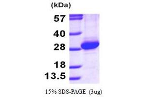 SDS-PAGE (SDS) image for RAB11A, Member RAS Oncogene Family (RAB11A) (AA 1-213) protein (His tag) (ABIN666996)