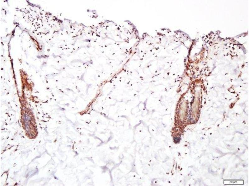 Immunohistochemistry (Paraffin-embedded Sections) (IHC (p)) image for anti-Fibroblast Growth Factor Receptor 2 (FGFR2) antibody (ABIN671751)