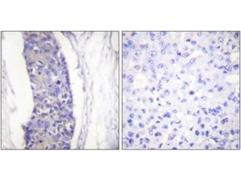 Immunohistochemistry (IHC) image for anti-TUBA1A antibody (Tubulin, alpha 1a) (ABIN1533449)