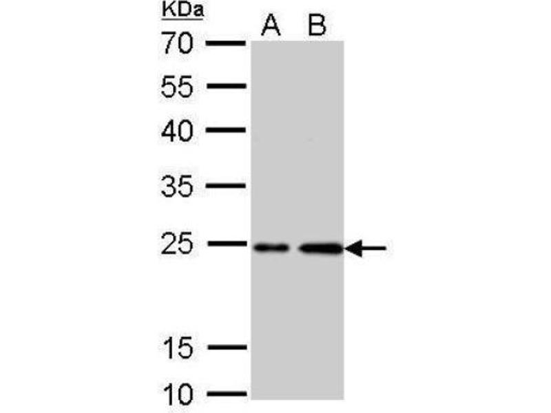 Western Blotting (WB) image for anti-HRAS antibody (V-Ha-Ras Harvey Rat Sarcoma Viral Oncogene Homolog) (C-Term) (ABIN4319843)