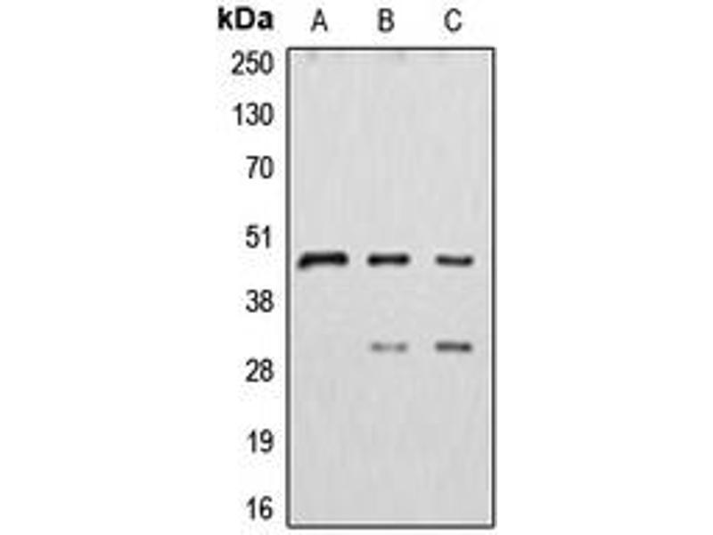 Western Blotting (WB) image for anti-Cathepsin D (CTSD) (Center) antibody (ABIN2705702)