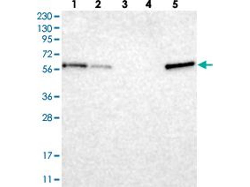 Western Blotting (WB) image for anti-Thioredoxin-Related Transmembrane Protein 3 (TMX3) antibody (ABIN5590407)