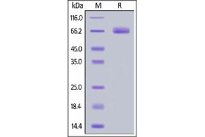 Image no. 2 for CD276 (CD276) (AA 29-465) (Active) protein (His tag) (ABIN6938824)