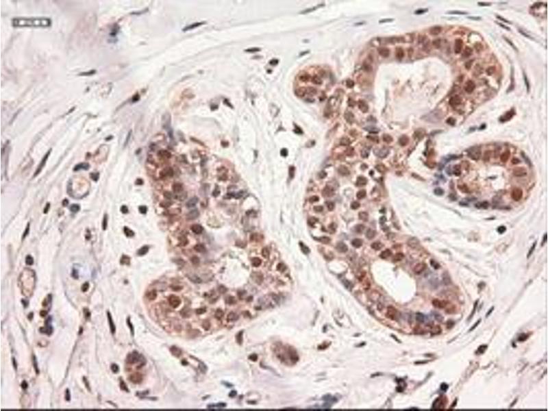 Image no. 2 for anti-Myc Proto-Oncogene protein (MYC) antibody (ABIN1497013)