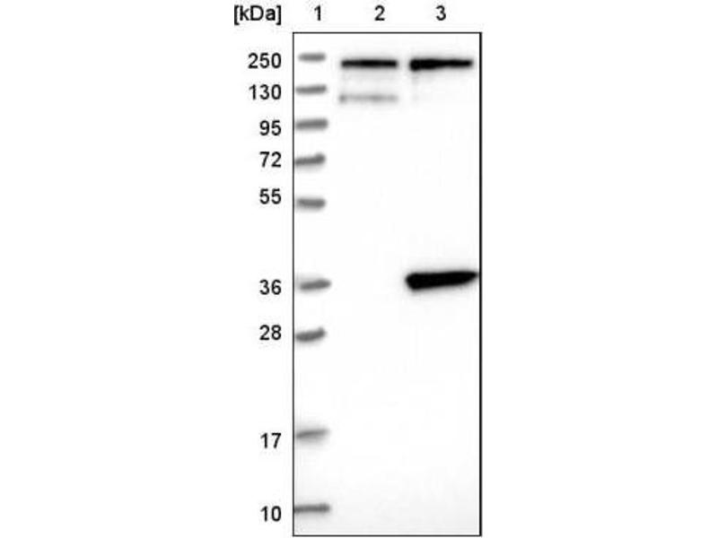 Western Blotting (WB) image for anti-Solute Carrier Family 25 (Carnitine/acylcarnitine Translocase), Member 20 (SLC25A20) antibody (ABIN4354141)