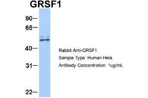 Image no. 2 for anti-G-Rich RNA Sequence Binding Factor 1 (GRSF1) (Middle Region) antibody (ABIN2778788)