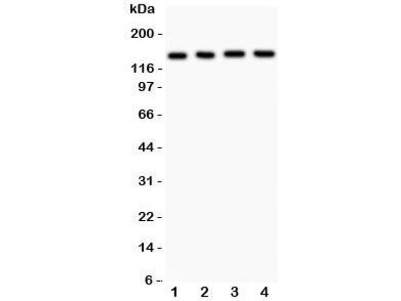 Western Blotting (WB) image for anti-ATP-Binding Cassette, Sub-Family B (MDR/TAP), Member 4 (ABCB4) (AA 601-720) antibody (ABIN3028483)