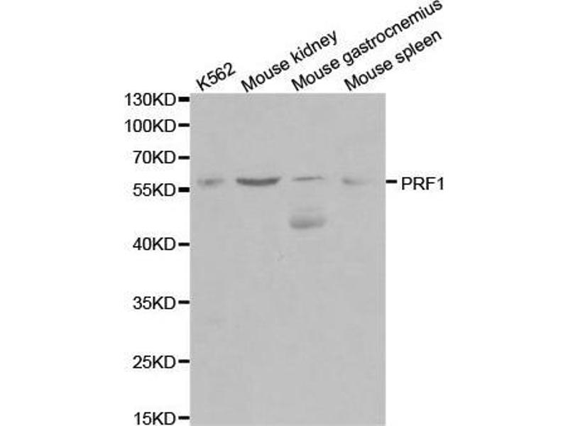Western Blotting (WB) image for anti-Perforin 1 (Pore Forming Protein) (PRF1) antibody (ABIN3020642)
