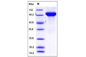 Image no. 1 for tyrosine Hydroxylase (TH) (AA 2-497) protein (His tag) (ABIN2003217)