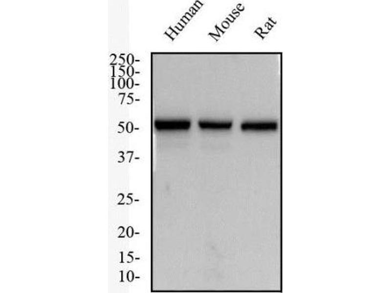Western Blotting (WB) image for anti-TACR1 antibody (Tachykinin Receptor 1) (N-Term) (ABIN268406)