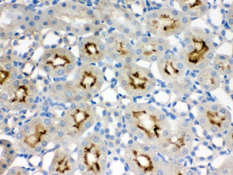Immunohistochemistry (IHC) image for anti-Structural Maintenance of Chromosomes 3 (SMC3) (AA 1178-1216), (C-Term) antibody (ABIN3043343)