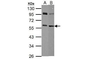 Image no. 1 for anti-Myc Proto-Oncogene protein (MYC) (Center) antibody (ABIN2855631)