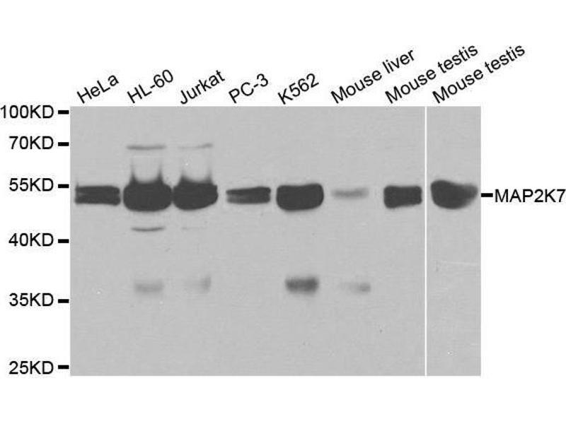 Western Blotting (WB) image for anti-Mitogen-Activated Protein Kinase Kinase 7 (MAP2K7) antibody (ABIN3023157)