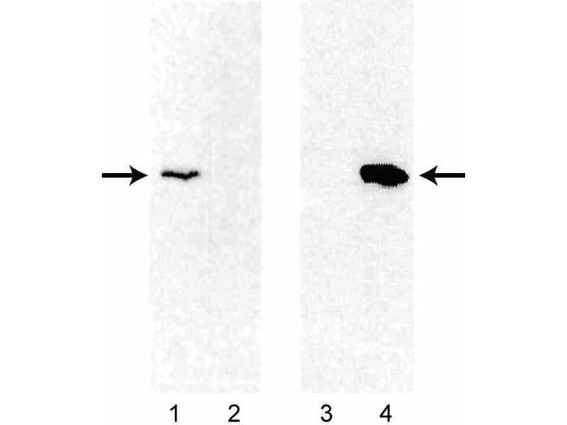 Western Blotting (WB) image for anti-BCL2 antibody (B-Cell CLL/lymphoma 2) (ABIN967441)