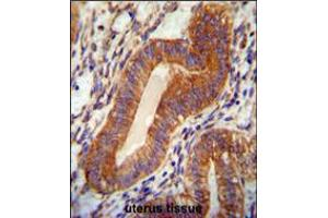 Image no. 1 for anti-Chromosome 18 Open Reading Frame 10 (C18orf10) (AA 109-137) antibody (ABIN5533040)