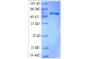 SDS-PAGE (SDS) image for Cyclin-Dependent Kinase 11A Protein A (AA 5-216), (partial) protein (GST tag) (ABIN1046882)