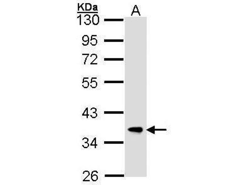 Western Blotting (WB) image for anti-F-Box and Leucine-Rich Repeat Protein 12 (FBXL12) (C-Term) antibody (ABIN2855977)