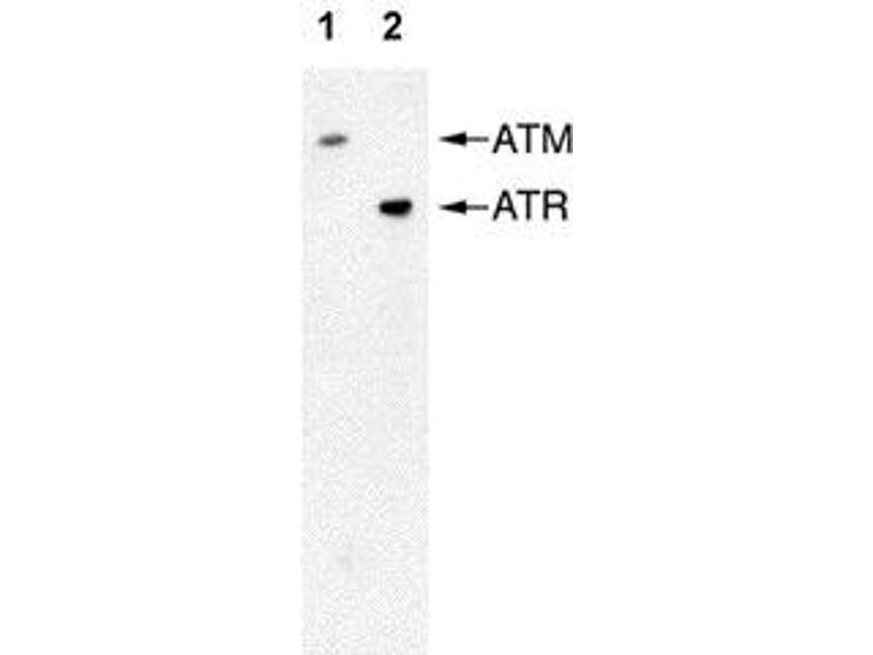 Western Blotting (WB) image for anti-ATM antibody (Ataxia Telangiectasia Mutated) (full length) (ABIN151775)