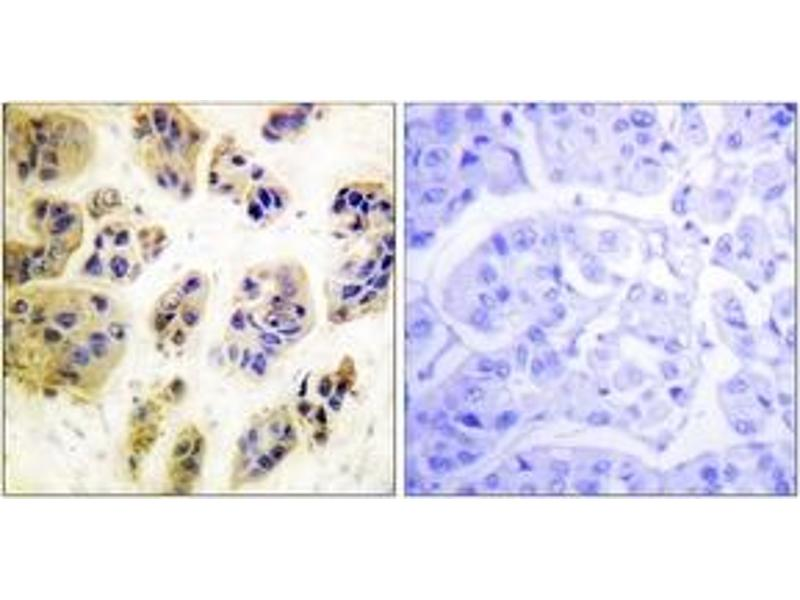 Immunohistochemistry (IHC) image for anti-CBL antibody (Cas-Br-M (Murine) Ecotropic Retroviral Transforming Sequence) (pTyr700) (ABIN1531307)