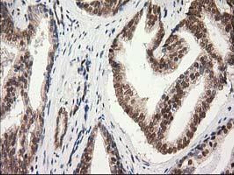 image for anti-Protein Kinase C, epsilon (PRKCE) antibody (ABIN1500231)