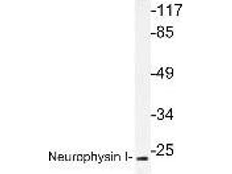 Western Blotting (WB) image for anti-Oxytocin (OXT) antibody (ABIN446958)