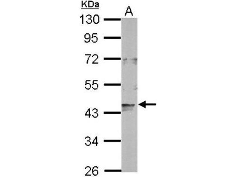Western Blotting (WB) image for anti-Lon Peptidase 2, Peroxisomal (LONP2) (C-Term) antibody (ABIN4331304)