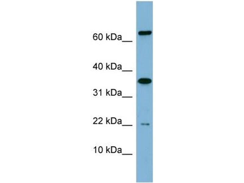 Western Blotting (WB) image for anti-RWD Domain Containing 1 (RWDD1) (Middle Region) antibody (ABIN504098)