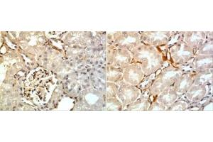 Immunohistochemistry (Paraffin-embedded Sections) (IHC (p)) image for anti-Betacellulin (BTC) antibody (ABIN4256231)