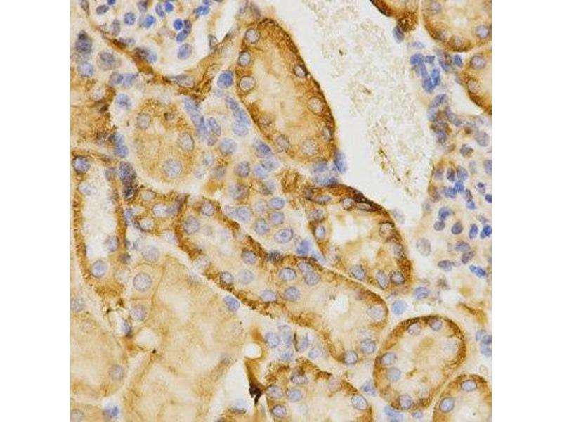 Immunohistochemistry (IHC) image for anti-Cell Division Cycle 42 (GTP Binding Protein, 25kDa) (CDC42) antibody (ABIN2736491)