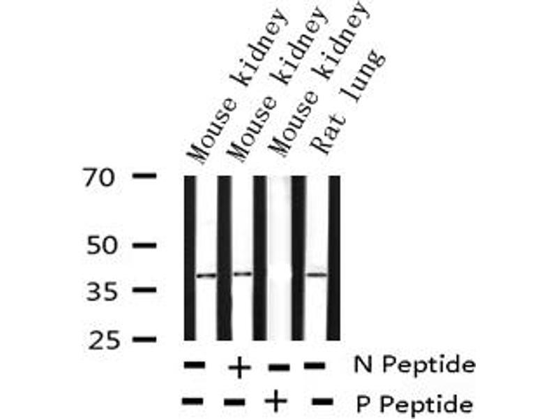 Western Blotting (WB) image for anti-Jun Proto-Oncogene (JUN) (pSer73) antibody (ABIN6255488)